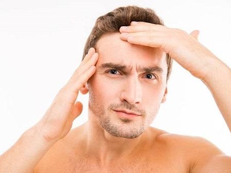 اقدامات لازم بعد از کاشت مو