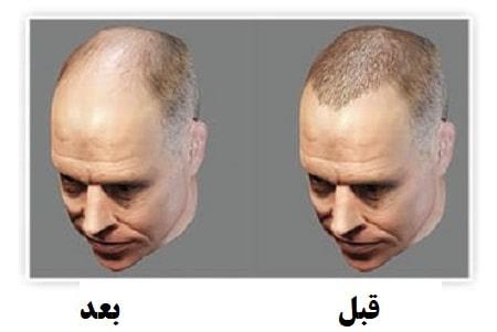 انتخاب بهترین و مناسبترین جراح کاشت مو