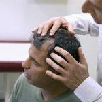 ترمیم مو به روش ترانس درمال