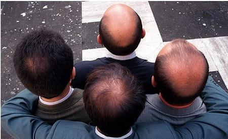 ریزش موی ارثی و ژنتیکی زنان و مردان با کاشت مو قابل درمان است