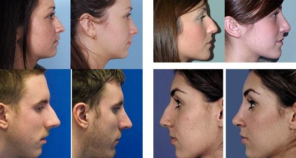 عمل جراحی بینی استخوانی (رفع قوز بینی)