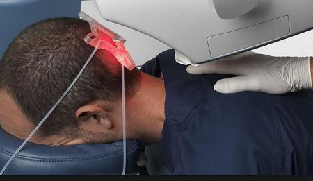 فرآیند عمل کاشت مو با لیزر چگونه است؟