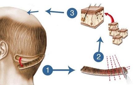 مراحل کاشت موی سر
