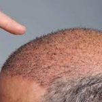 مزایای کاشت موی سر