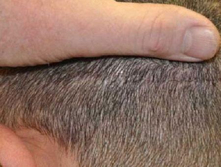 مزایای کاشت مو به روش FUT