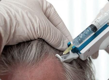 مزوتراپی برای افزایش رشد موها