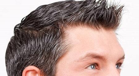 کاشت مو به روش FUT (کاشت مو اف یو تی)