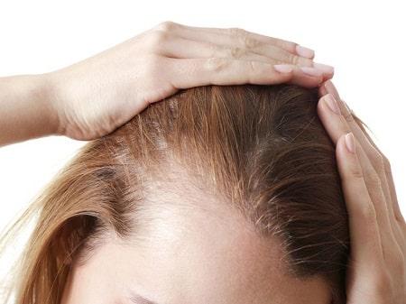 کاشت و ترمیم مو بدون نیاز به عمل جراحی