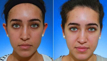 روشهای سفید و روشن کردن پوست