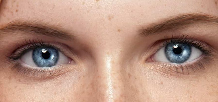 رفع لک صورت با لیزر درمانی (q-switch)