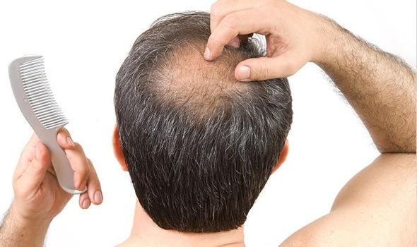 عوارض پودر پرپشت کننده مو ودرمان های جایگزین تاسی و کم پشتی موها