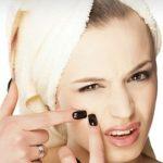 لیزر جوش صورت و بدن جهت از بین بردن و درمان