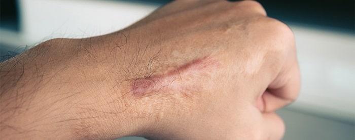 لیزر درمانی و رفع جای سوختگی و جای بخیه(اسکار)