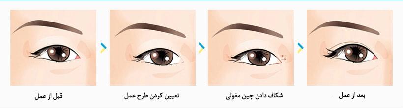 اپی کانتوپلاستی (جراحی بزرگ کردن چشم)
