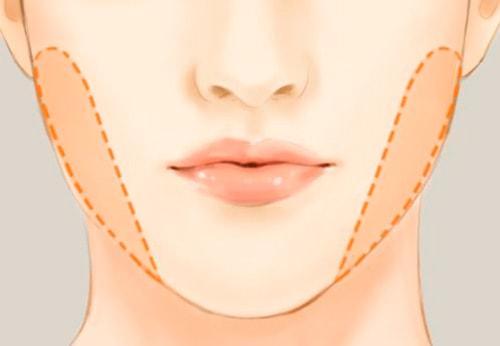حذف چربی باکال برای درمان چاقی صورت