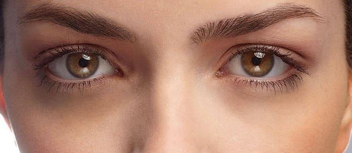 درمان سیاهی زیر چشم توسط دکتر جمیلی