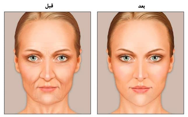 رفع لاغری صورت (چاق شدن صورت) با تزریق چربی