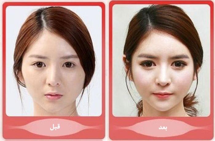 عمل جراحی زیبایی برای درشت کردن (بزرگ کردن) چشم